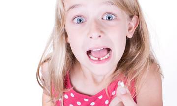 Τι να κάνω αν το δόντι έχει βγει ολόκληρο από τη θέση του;