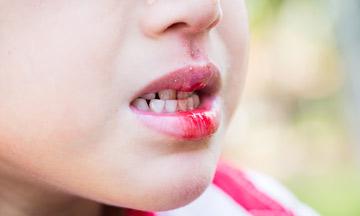 Τι να κάνω αν μετά από τραυματισμό το δόντι παρουσιάζει μετακίνηση ή κινητικότητα;
